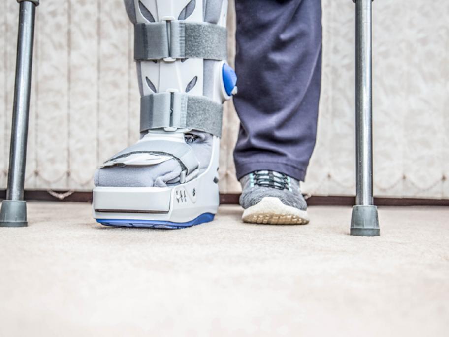 Fractured foot in splint
