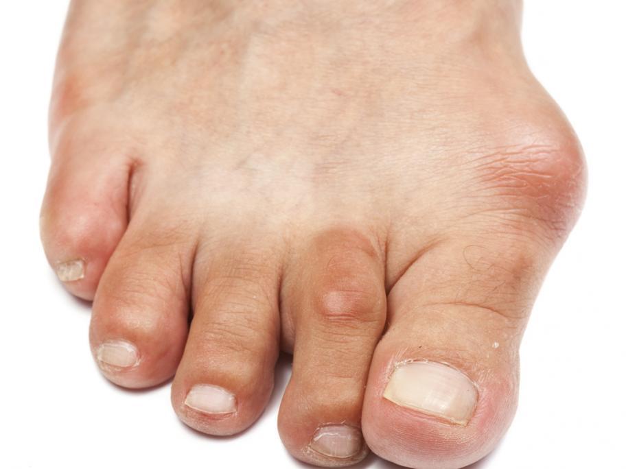 gouty foot