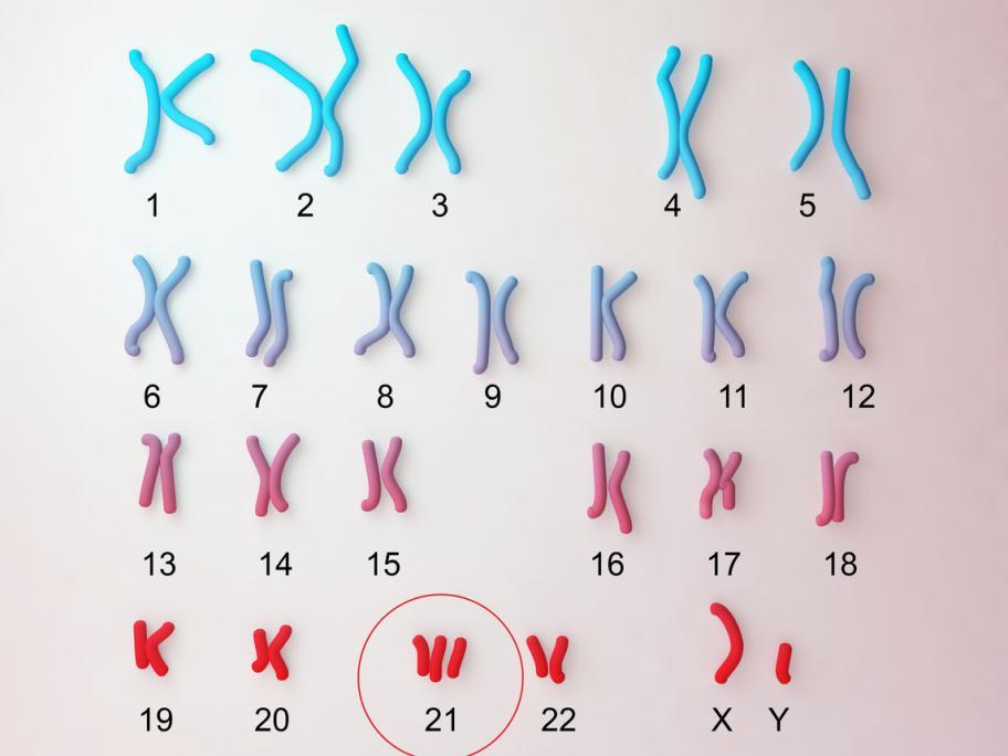 karyotype Down syndrome