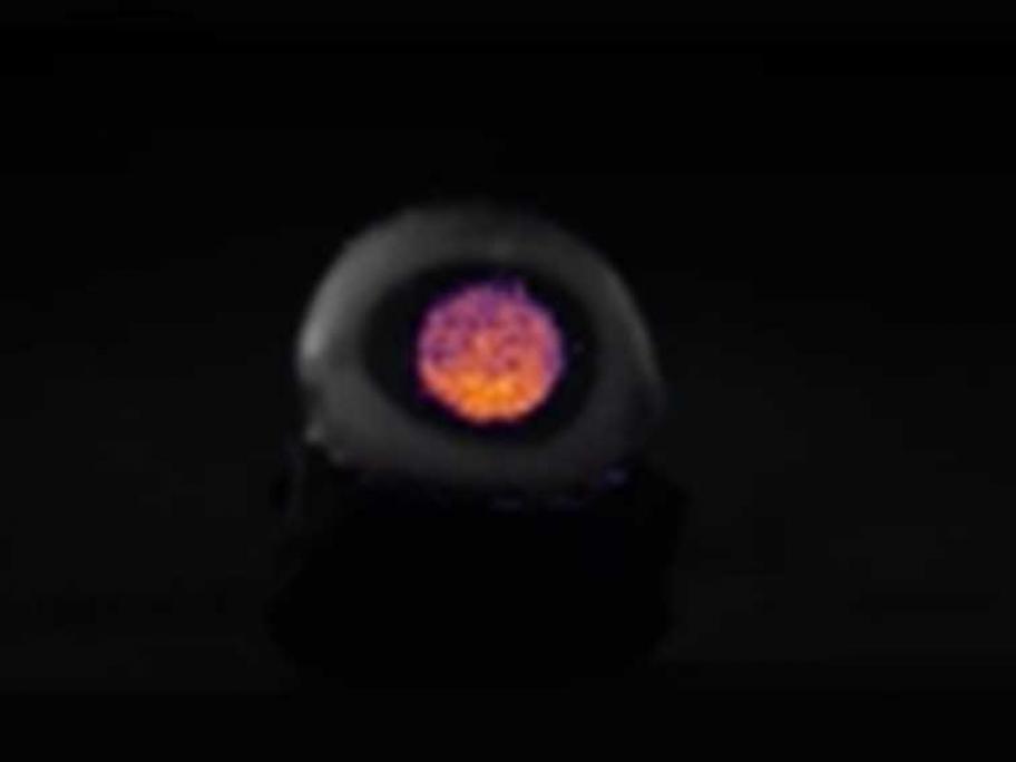 Cherenkov light in eye