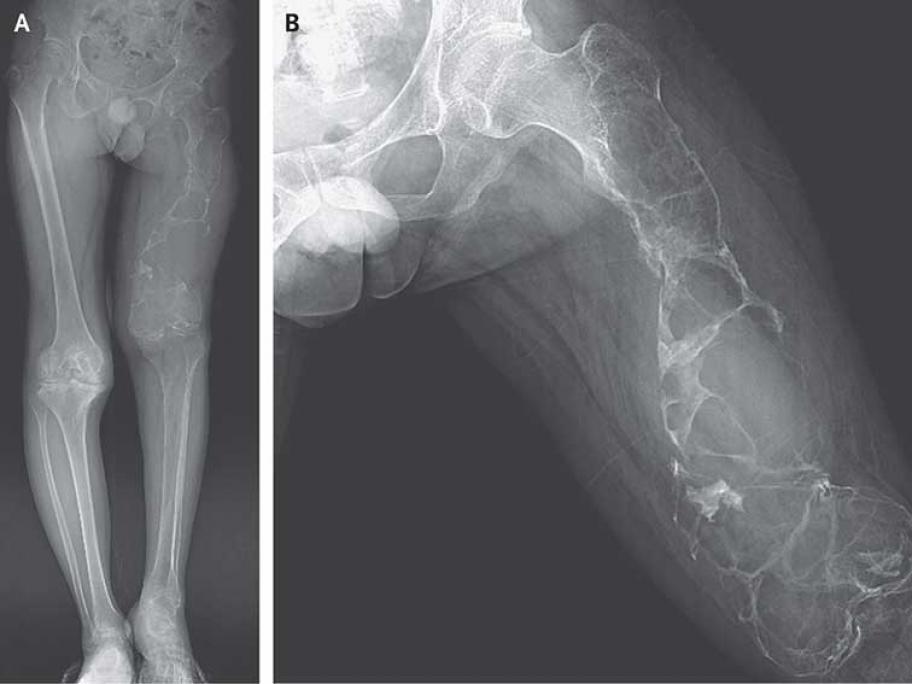 X-ray of femur