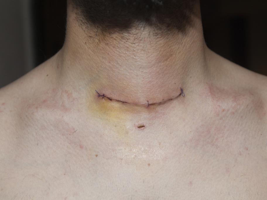 Thyroidectomy scar