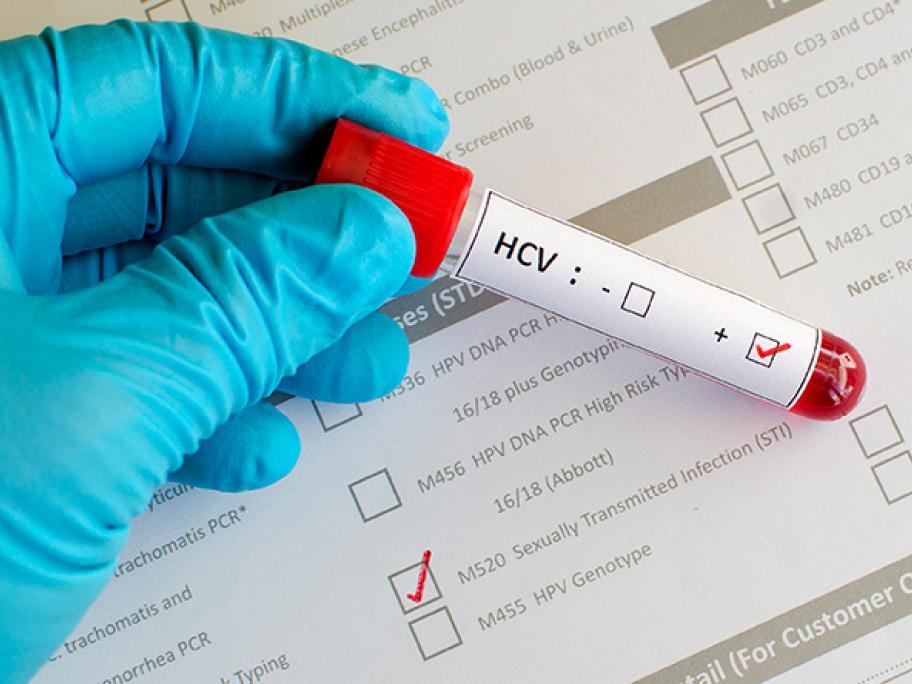 HCV test