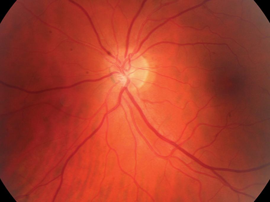syphilitic eye