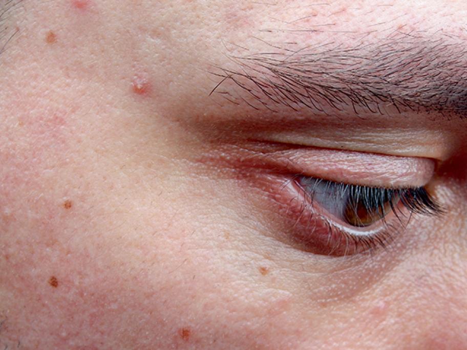 persistant acne