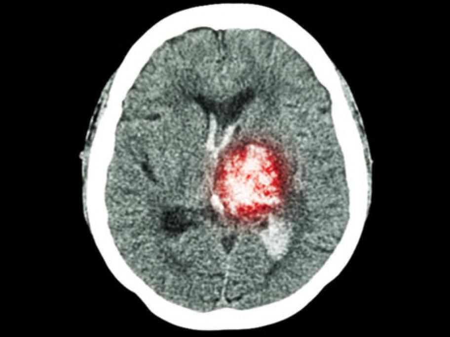 brain haemorrhage