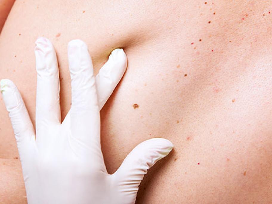 Melanoma skin examination
