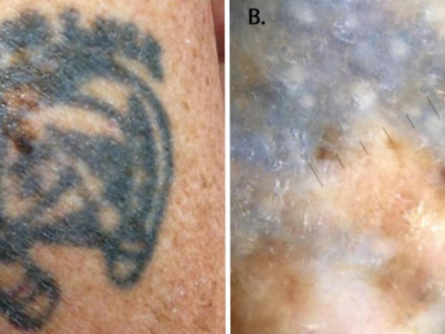 Melanoma Hidden By Tattoo Australian Doctor Group