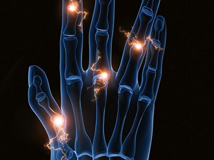 rheumatoid arthritis concept pic