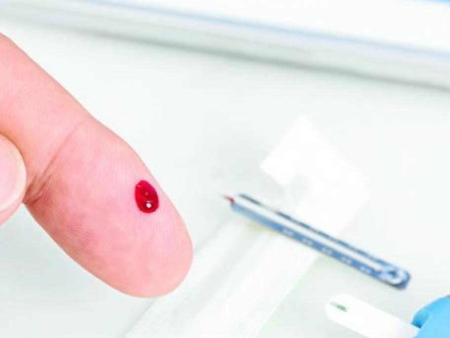 Finger prick glucose test