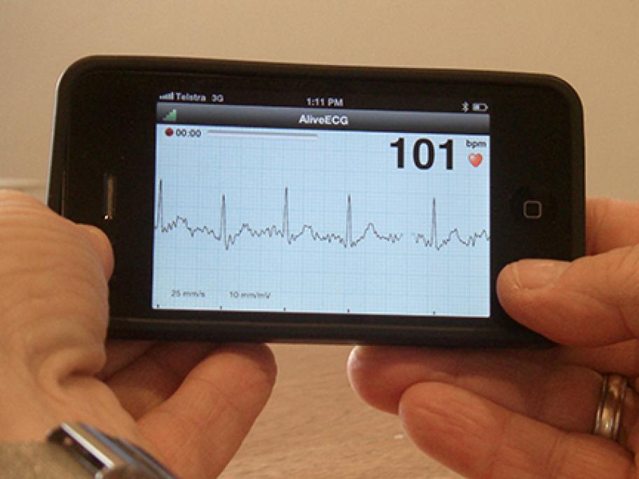 ECG on iPhone