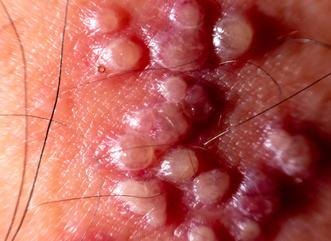herpes zoster rash